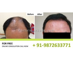 Best Hair Transplant Clinic in Ludhiana at low cost..