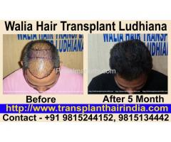 Best Hair Transplant by FUE surgeries in India Ludhiana Punjab