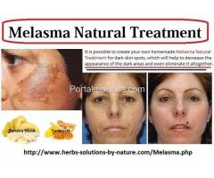 Natural Herbal Treatment for Melasma
