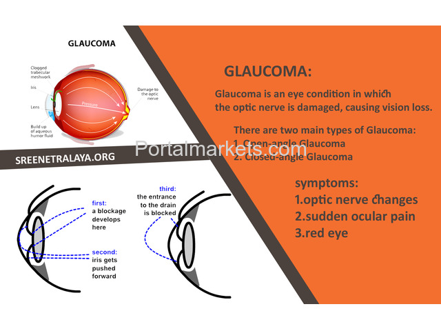 Glaucoma Treatments and services | Best eye hospitals in Hyd - 1/3